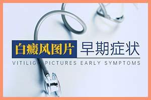 早期白癞风-出现什么症状表示是初期